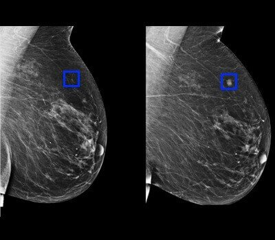 annotation-for-ai-in-breast-cancer